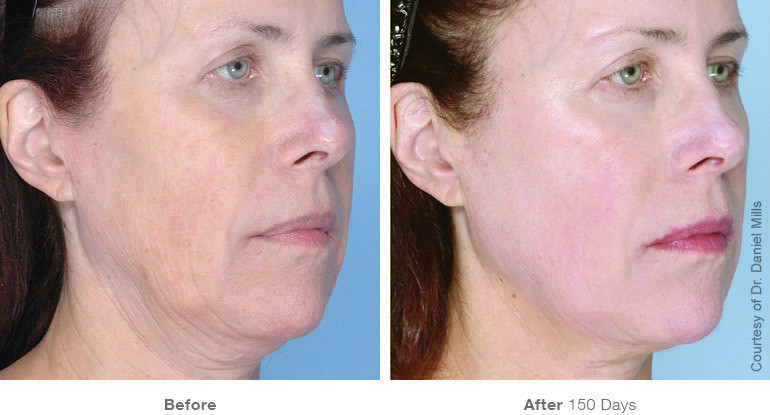 3before_after_ultherapy_results_full-fac