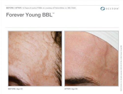 forever-young-sciton-bbl-vancouver.jpg