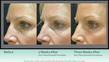 ThermiSmooth-Before-and-After-2.jpg
