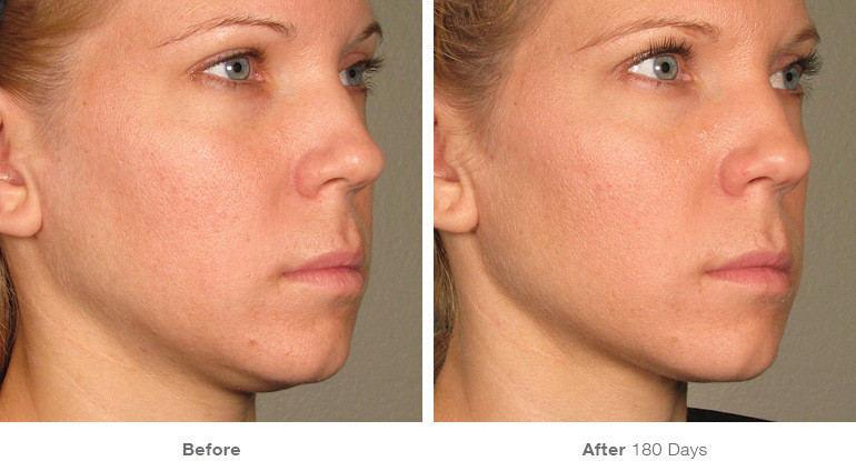 5before_after_ultherapy_results_full-fac