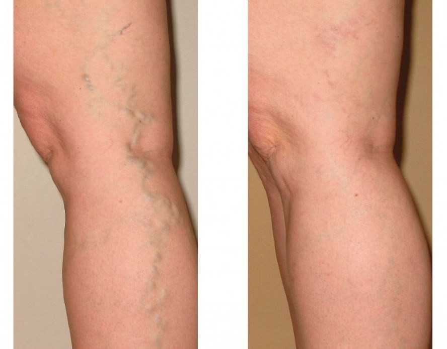 varicose-veins.jpg