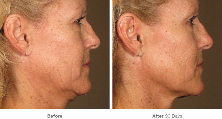 2before_after_ultherapy_results_full-fac