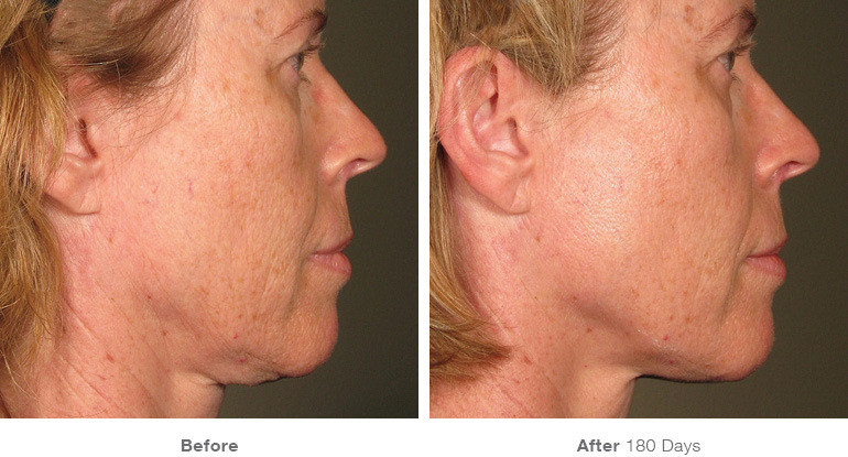6before_after_ultherapy_results_full-fac