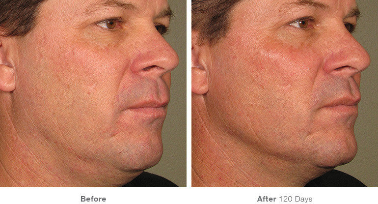 4before_after_ultherapy_results_full-fac