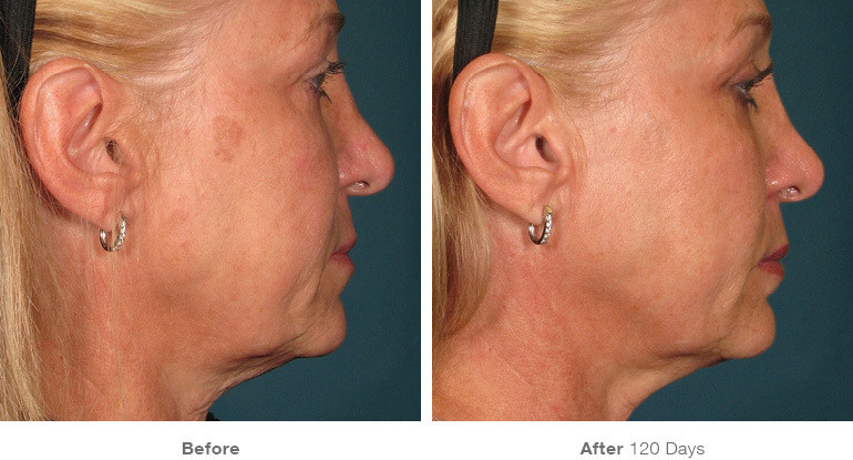 10before_after_ultherapy_results_full-fa
