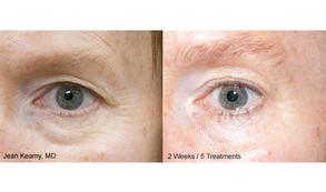 Jean-Keamy_2-Weeks_5-Treatments.jpg