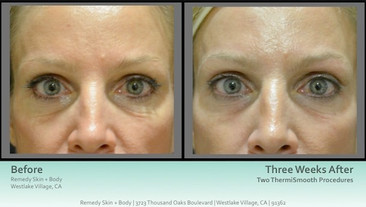 ThermiSmooth-Before-and-After-1.jpg