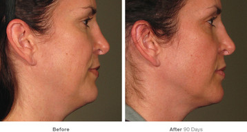 11before_after_ultherapy_results_full-fa