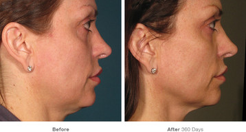 1before_after_ultherapy_results_full-fac
