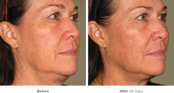 8before_after_ultherapy_results_full-fac