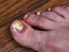 Margaret Carruthers Podiatrist and Chiropodist | Ingrowing Toe Nails