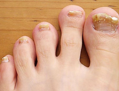 Margaret Carruthers Podiatrist and Chiropodist | Fungal nail and Athlete's Foot
