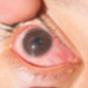 anterior uveitis | perikeratic redness