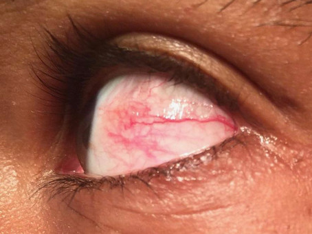 Pink Eye Treatment: It's Not as Difficult as You Think