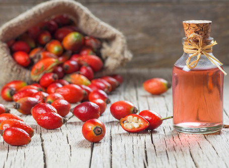 "Rosehip Oil - My ""Hero Oil"""