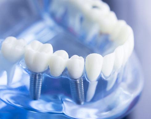 colocar-implante-dental-lleida-1080x675_