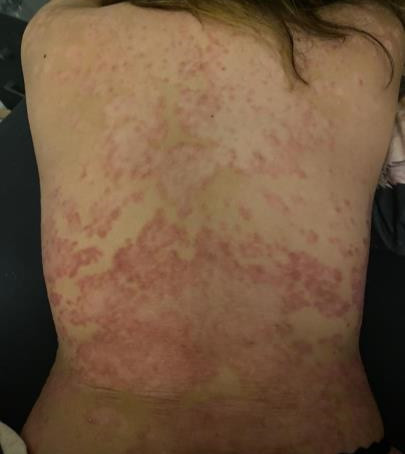 Study: Bioptron in the treatment of Psoriasis