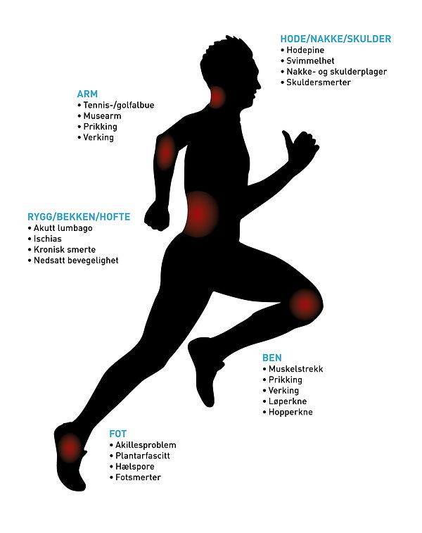 Tennis-/golfalbue, musarm, prikking, verking, hodepine, svimmelhet, nakke-og skulderplager, skuldersmerter, akutt lumbago, ischias, isjias, kronisk smerte, nedsatt bevegelighet, muskelstrekk, løperkne, hopperkne, akillesproblem, plantarfascitt, hælspore, fotsmerter