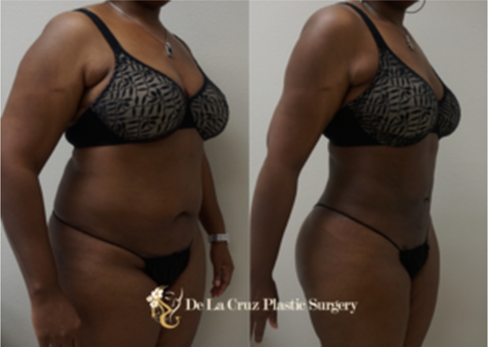 Before-and-after pictures of large volume VASER Liposuction performed by Dr. De La Cruz