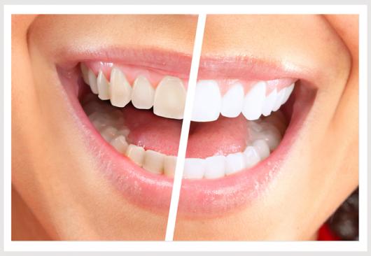Vitae Odontologia Especializada Sua Clinica De Confianca Na Barao