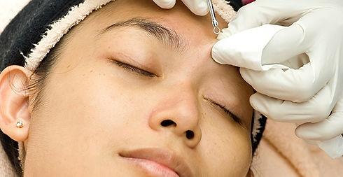 clear-skin-with-acne-facial.jpg