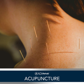 0 ADIrehab Services 3.0 12 Accupuncture