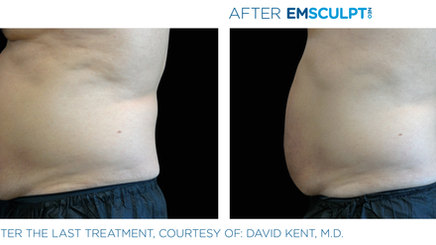 Emsculpt Neo Before and After, Courtesy of David Kent, MD