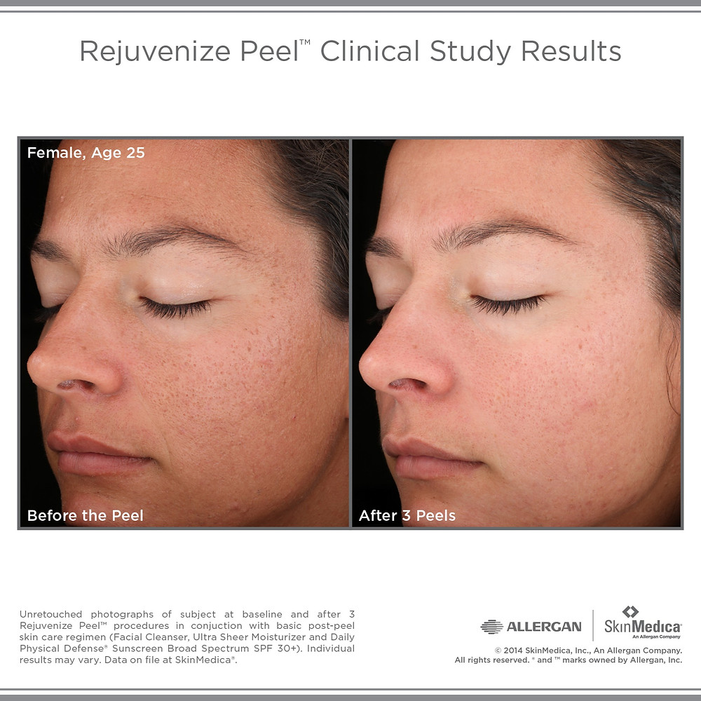The Rejuvenize Peel is our deepest peel