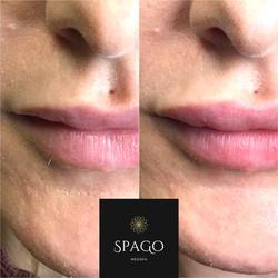 Lip Augmentation at SpaGo MedSpa