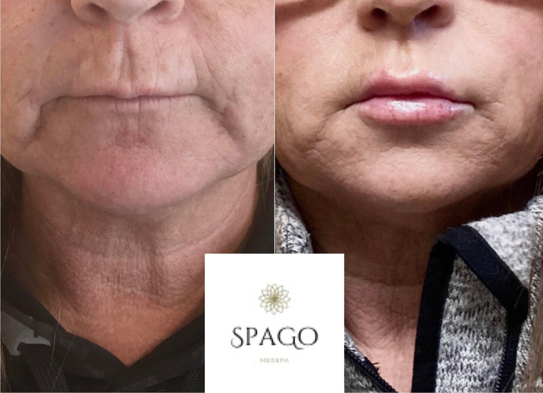 Face and lip filler