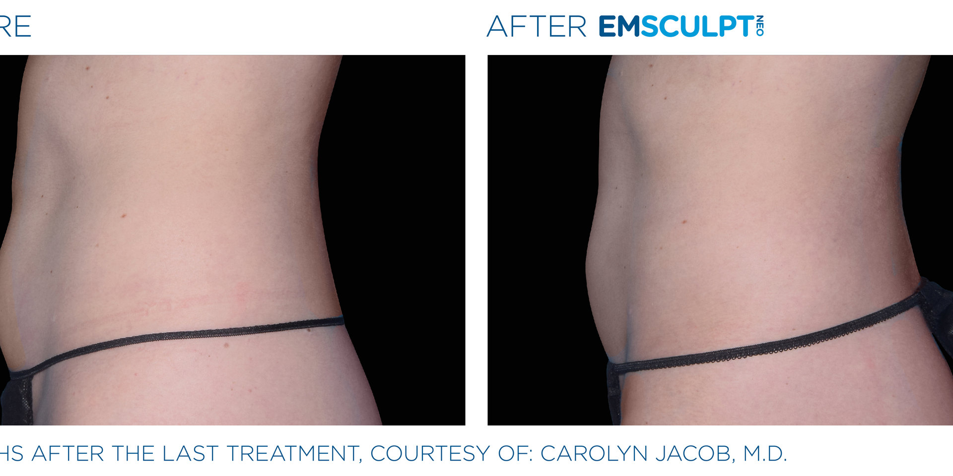 Emsculpt Neo Before and After Female