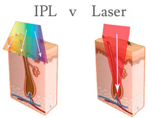 IPL versus Aerolase.  SpaGo MedSpa explains the difference.