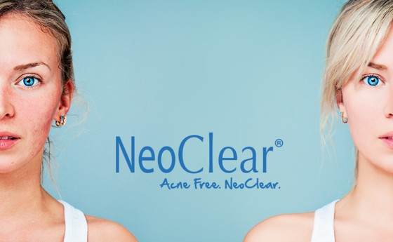 NEOCLEAR BY AEROLASE® ACNE/ACNE SCARS