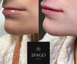 Left view of lip filler