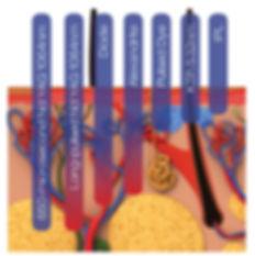 A comparison of light treatment versus laser penetration.
