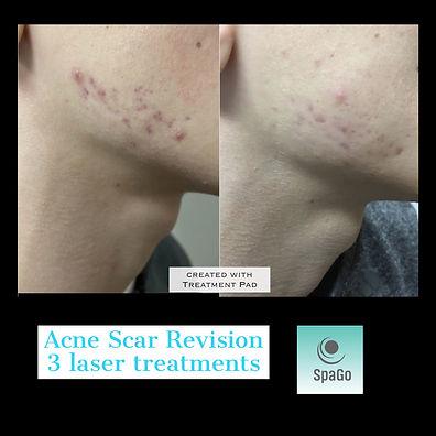 Acne Scar Revision by SpaGo
