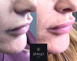 Upper lip protrusion