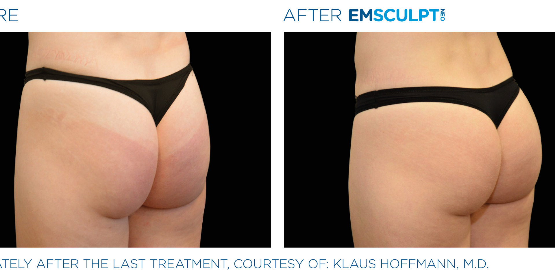 Emsculpt Neo Before and After