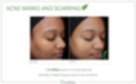 ViPeel Acne Treatment at SpaGo MedSpa