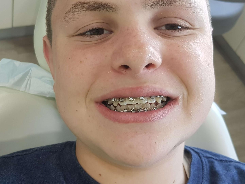 יישור שיניים לקראת תום הטיפול.jpg