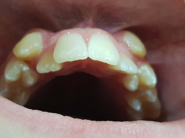 יישור שיניים בתחילת תהליך.jpg