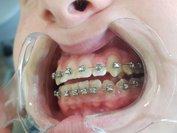 לאחר ביצוע יישור שיניים.jpg