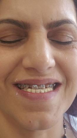 יישור שיניים - בתהליך טיפול.png