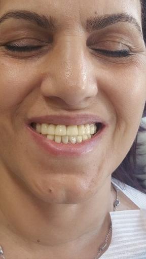 תוצאת טיפול יישור שיניים דר דאלי מרפאת ש