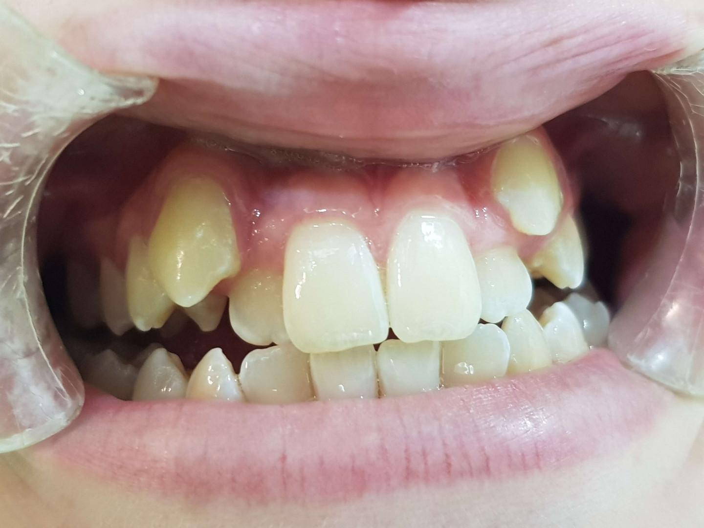יישור שיניים לסת עליונה ותחתונה - דר דאל