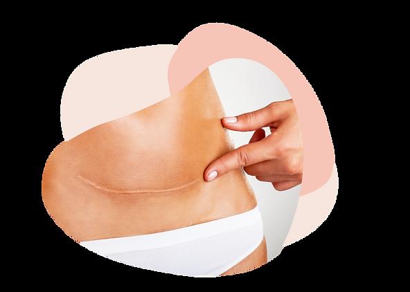 Narbenbehandungen - eine umfassende Method