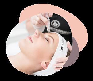 Microneedling - hilft die Haut zu verjüngen und Pigmentflecken zu entfernen