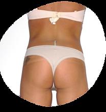 Vor einer Behandlung sind man Dellen und schlaffes Gewebe - nach der Behandlung zieht sich die Haut zusammen und gewinnt an Spannkraft