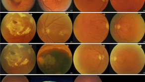 The Epidemiology of Macular Degeneration