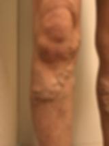 下肢静脈瘤写真_edited